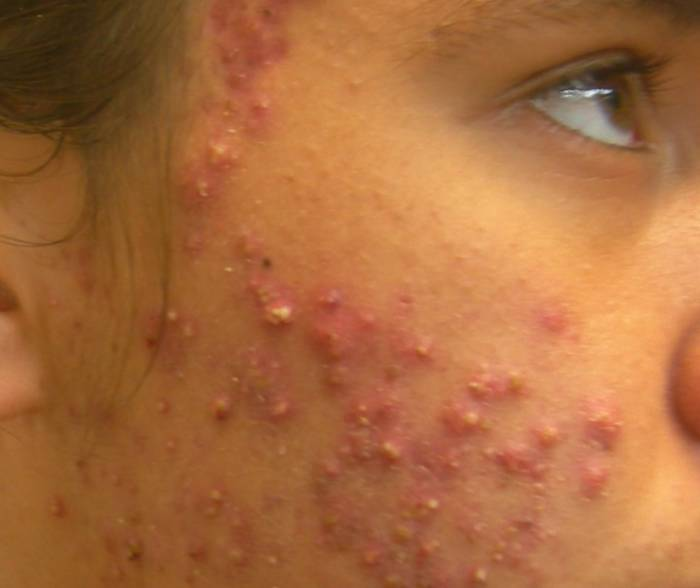 acne adult severe