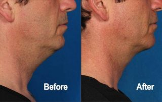 Kybella, Before and After, Actual Patient, Side View, Male