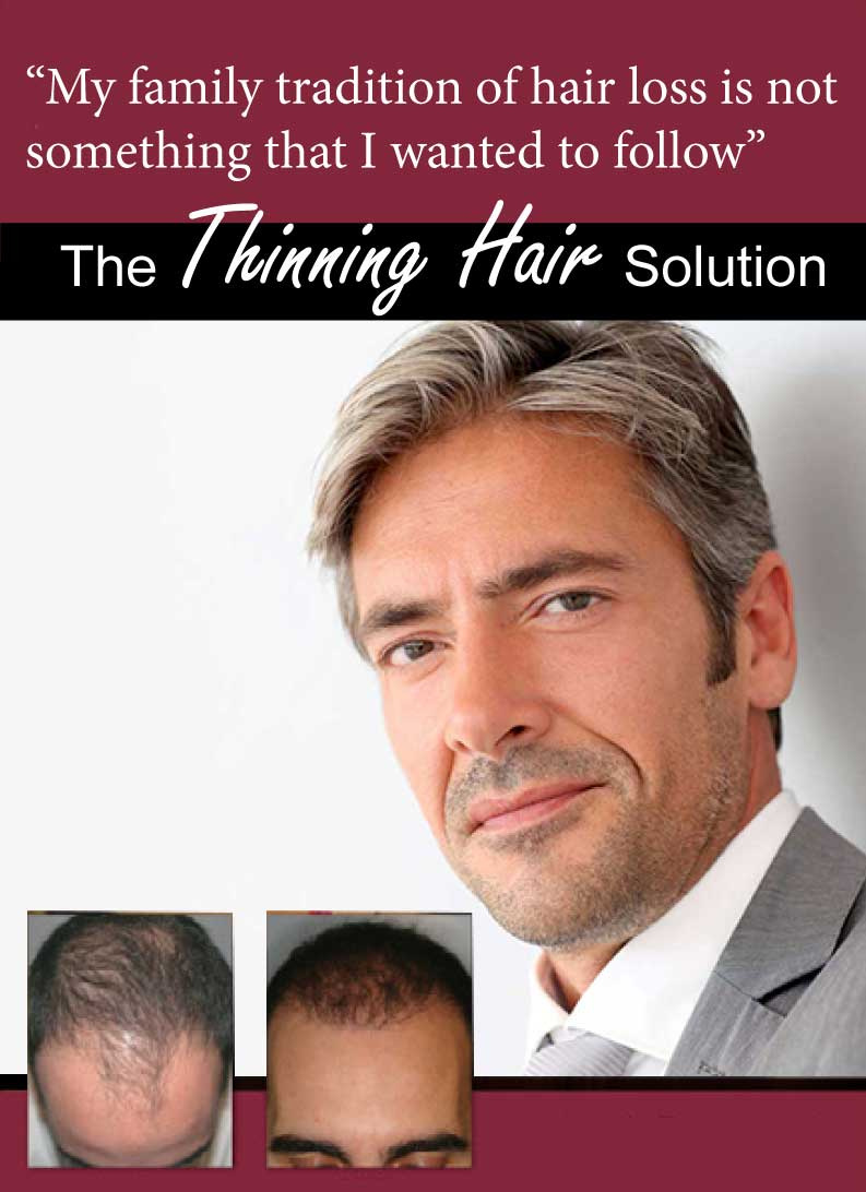 Change the family tradition of hair loss, today, at NeoGraft Hair Transplants by Dr. Timothy Jochen, call 760-423-4004.
