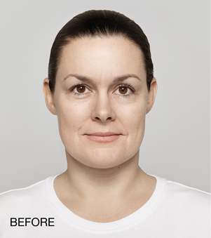 Before-Restylane Lyft