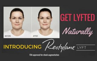 Get Lyfted, new FDA Approved Restylane Lyft