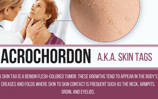 Dr. Timothy Jochen can remove your bothersome skin tags at Contour Dermatoogy