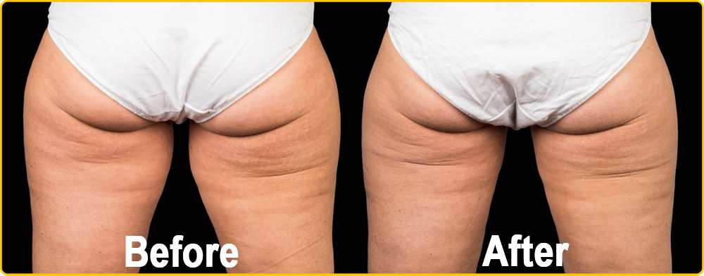 CoolSculpting for Inner & Outer Thighs at Contour Dermatology
