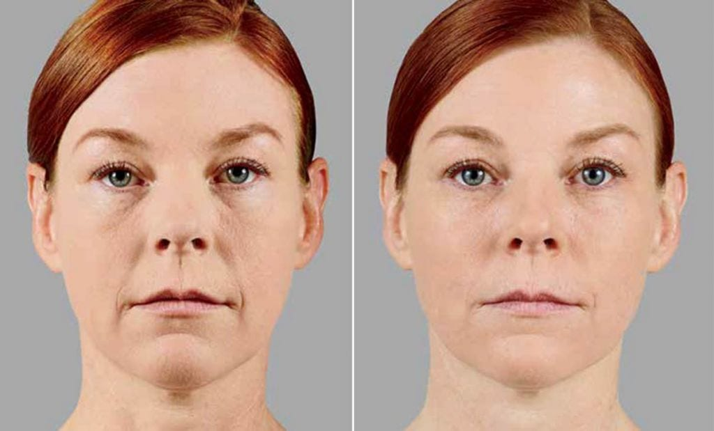 Voluma Before and After Photo