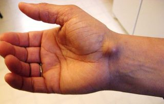 An example of a ganglion cyst
