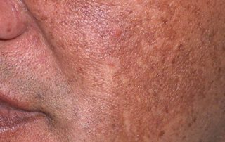 Hyperpigmentation of the face