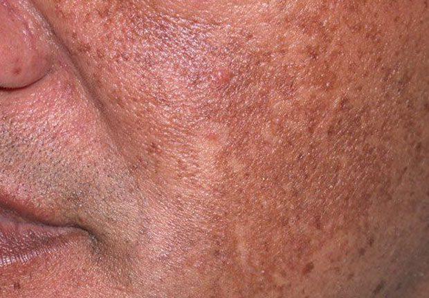 Hyperpigmentation Contour Dermatology