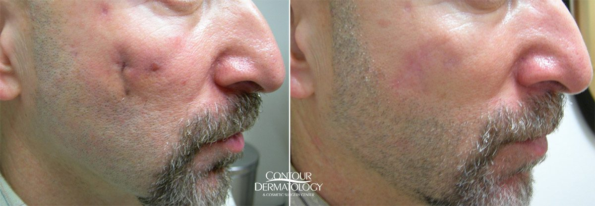 Scar Revision Photo Gallery Contour Dermatology