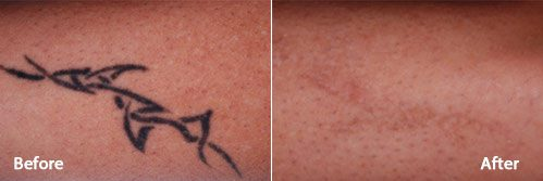 PicoWay Laser Tattoo Removal System