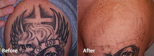 PicoWay Tattoo Removal Before and After