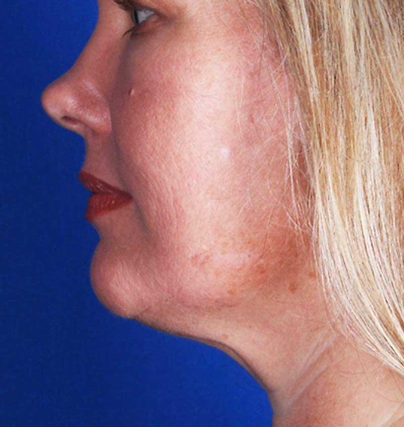 After-CoolSculpting for Double Chin (Submental)