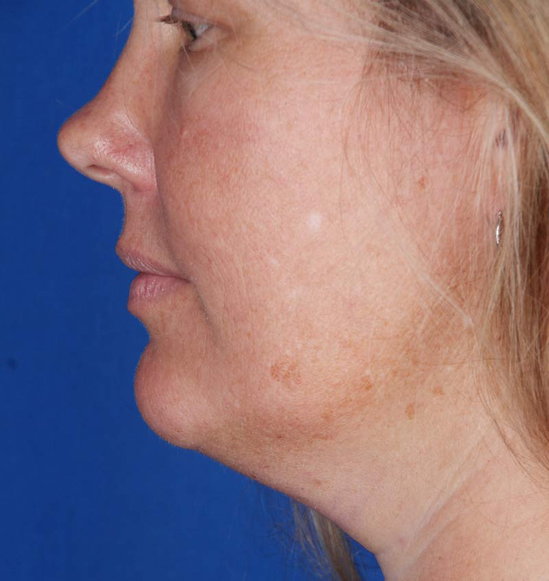 Before-CoolSculpting for Double Chin (Submental)