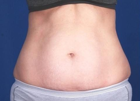Before-CoolSculpting for Abdomen