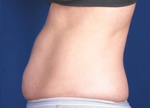 Before-Actual Patient Coolsculpting for Abdomen