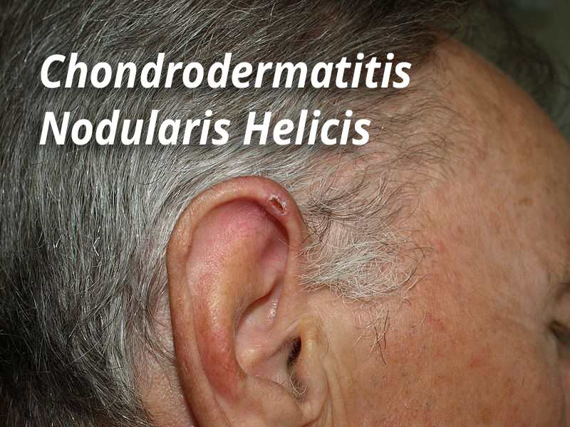 Cdnh Chondrodermatitis Nodularis Helicis Contour