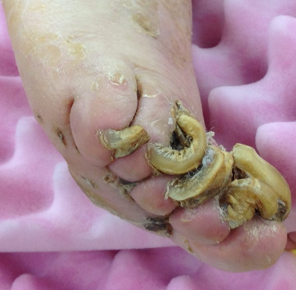 Nail Dystrophy and Disease   Contour Dermatology