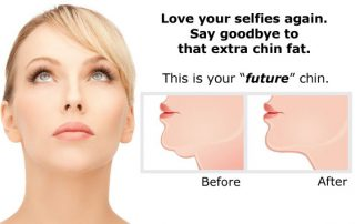 Kybella Lunch & Learn, May 10, 2016