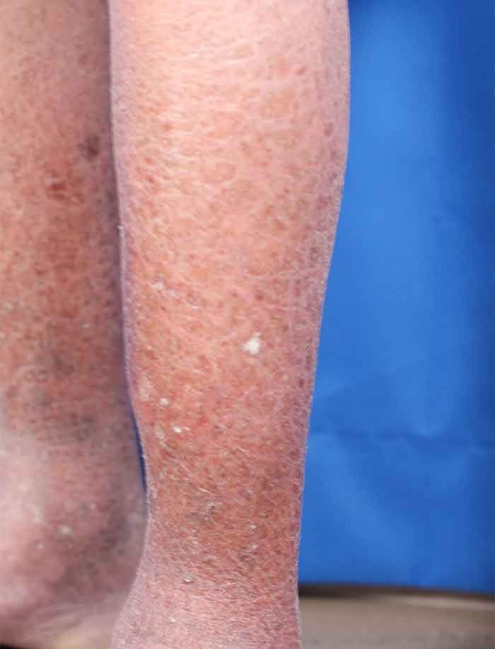 Ichthyosis Vulgaris on legs