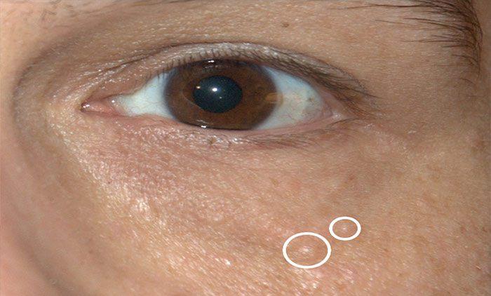 Syringoma Contour Dermatology