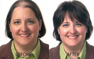 Neograft for Women before-after