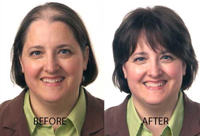 Hair Transplant For Women Neograft For Women Contour