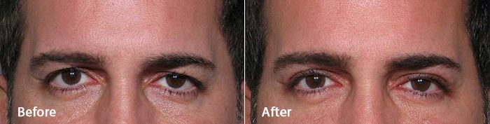 Actual Contour Dermatology patient eyelid surgery before and after photo