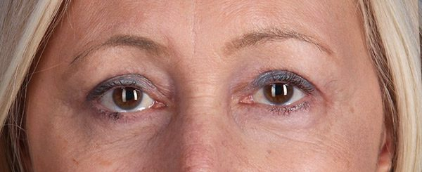After-Upper and Lower Eyelid Surgery
