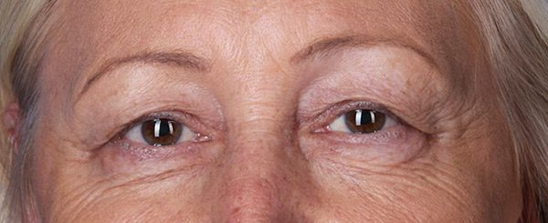 Before-Upper and Lower Eyelid Surgery