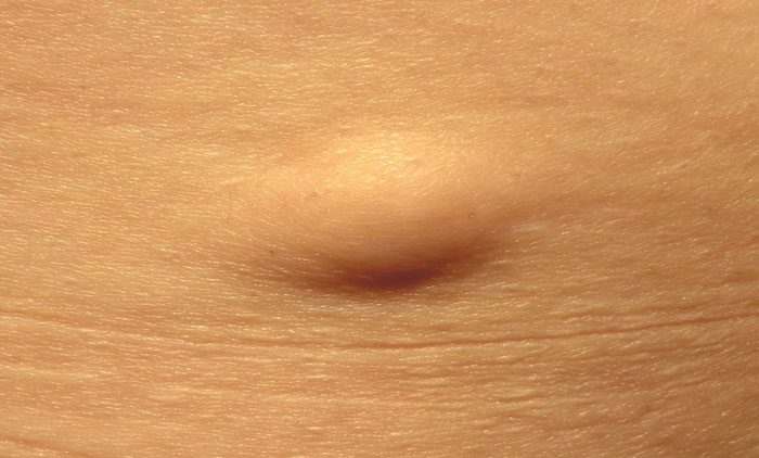 Superficial Subcutaneous Lipoma example