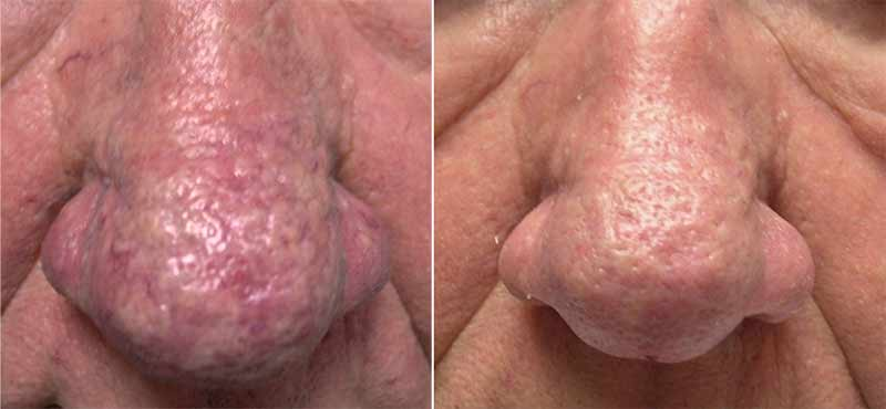 Nose Fractional CO2 Before and After