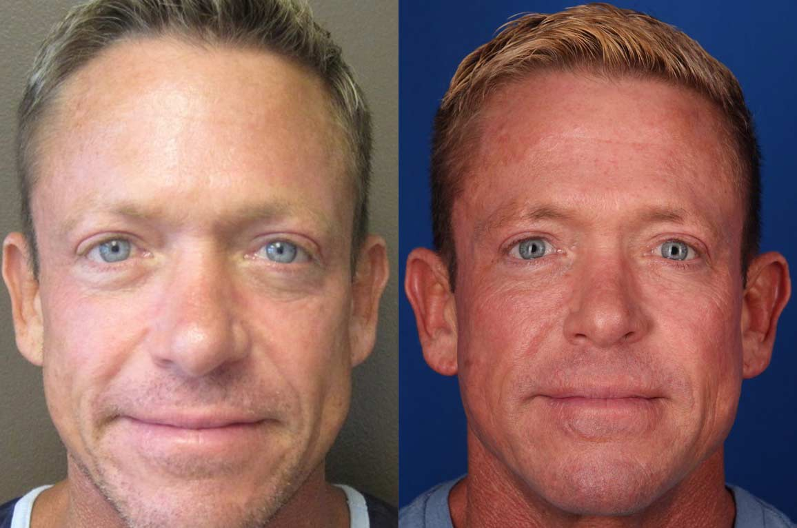 Restylane Defyne Before and After