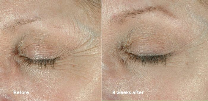 Obagi Elastiderm before and after photo