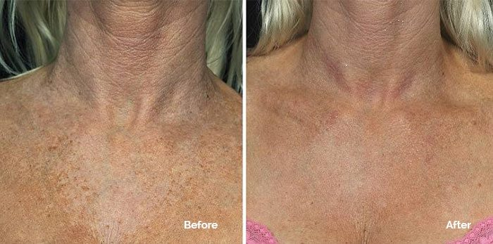 Fraxel for Décolletage before and after photo
