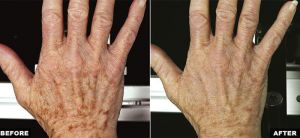 Fraxel Laser Before and After for Hands
