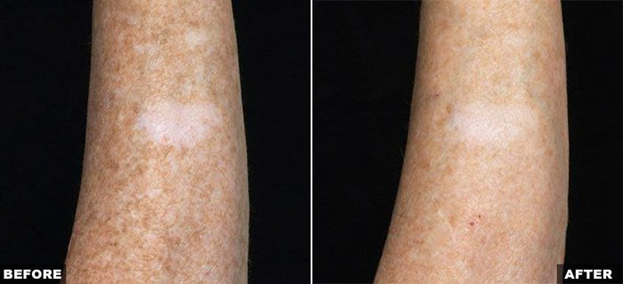 Fraxel Laser for Body Pigmentation