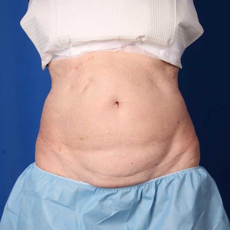 Before-CoolSculpting the Abdomen