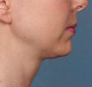 Kybella Photo Gallery