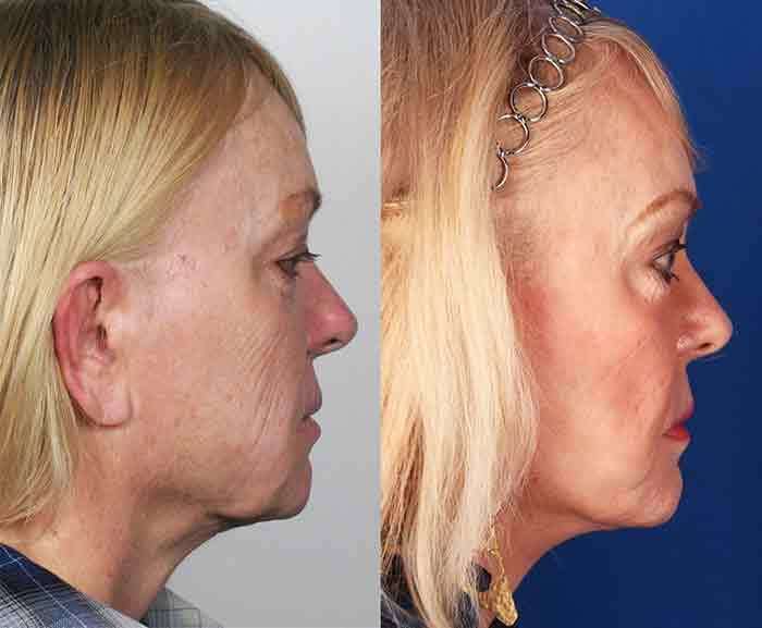 Mini-facelift before and after
