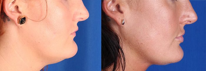 CoolSculpting before and after chin (submental area)