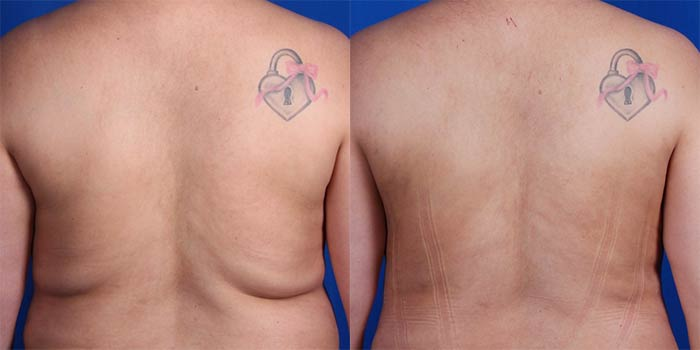 Lipo in the back area before and after