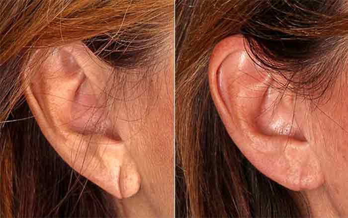 Earlobe Repair on Right Side Before and After