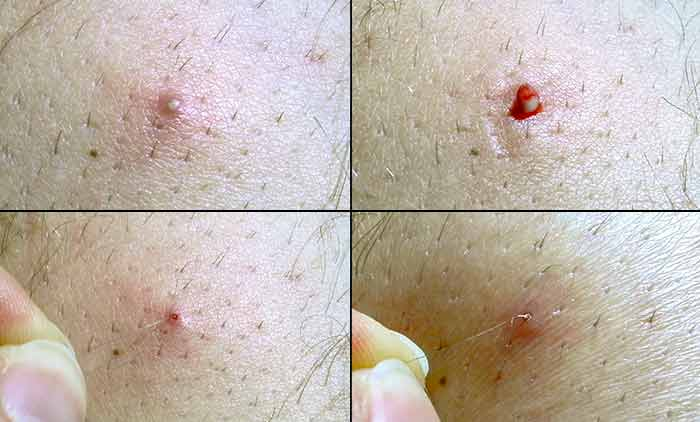 Ingrown Hairs Where They Happen Why And How To Treat Them