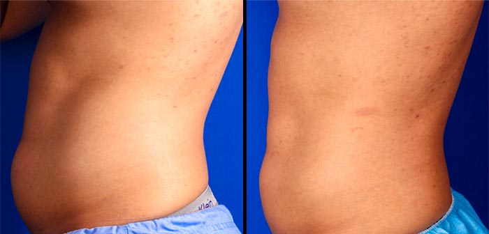 CoolSculpting results on the abdomen