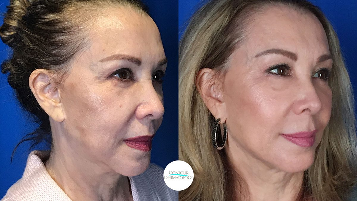 Facial Filler Before And After Photo Gallery Palm Desert Palm Springs Contour Dermatology