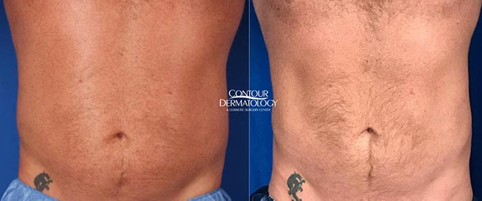 CoolSculpting - abdomen and flanks, 2 treatments