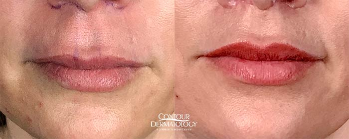 Exclusively at Contour Dermatology, Lip Lifts are IN!