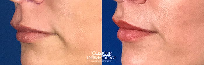 Contour Dermatology Lip Lift Before and After