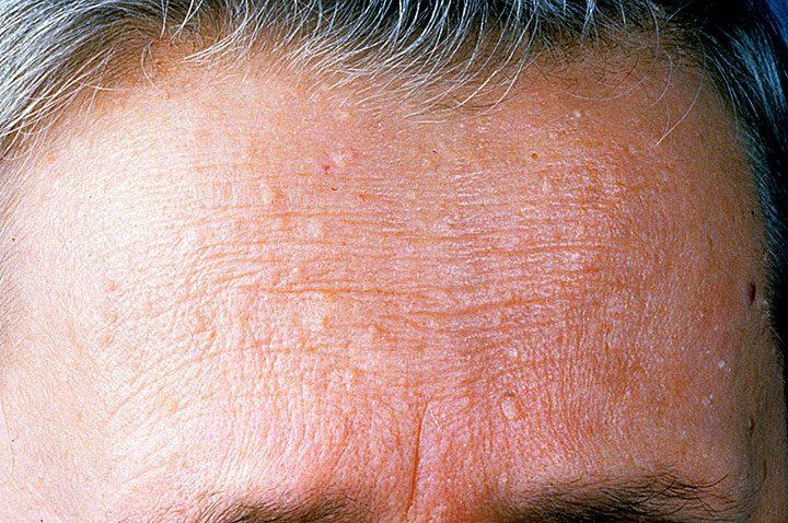 Cowden Syndrome Contour Dermatology
