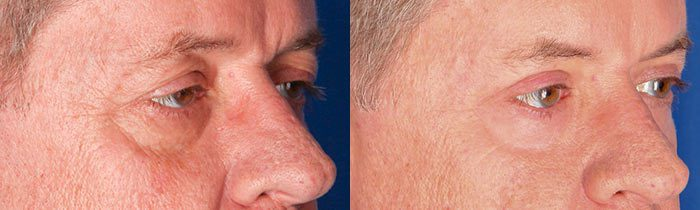 Upper Blepharplasty/CO2 Laser Combo Treatment Before and After Results
