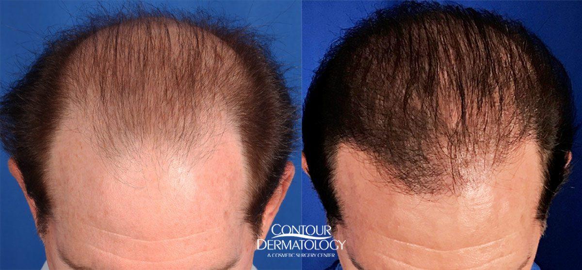 Hair Transplant and Restoration   Palm Desert   Palm Springs
